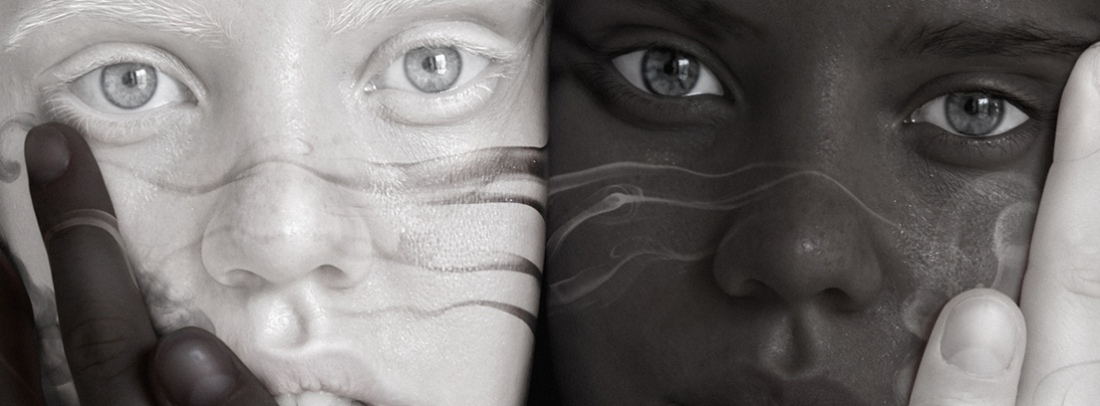 albinismo-3